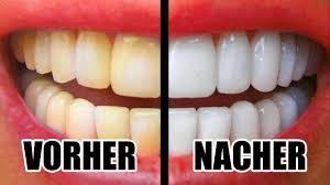 weiße/ gelbe Zähne im Vergleich